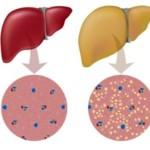 karaciğer yağlanmasına ne iyi gelir